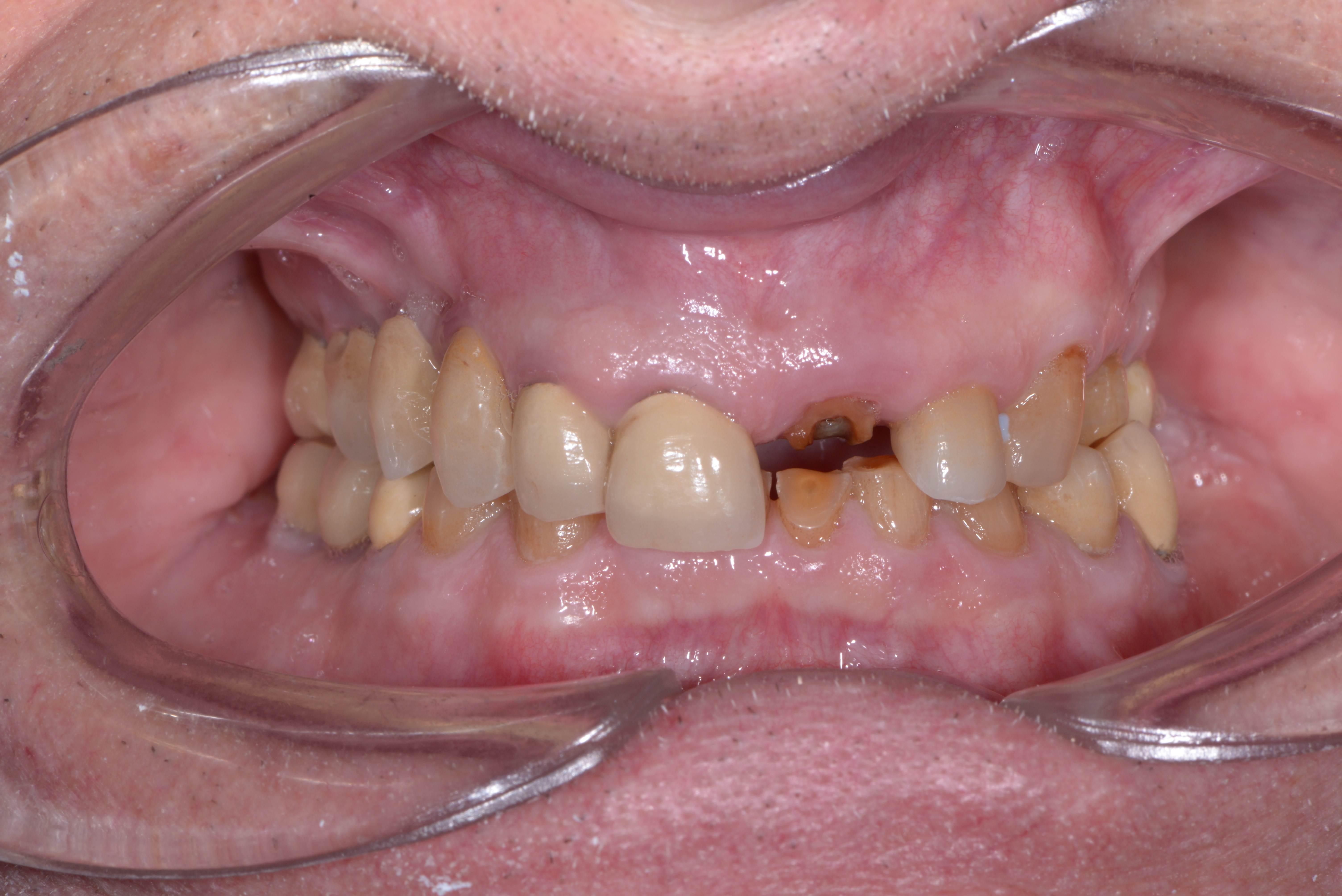 amalgam tänder spricker